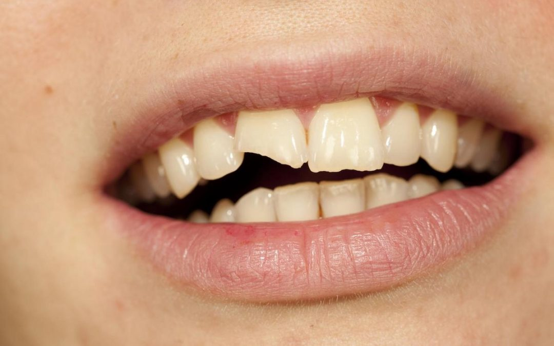 Your Warrnambool Dentist Answers: I Chipped My Dental Implant – How Serious is it, And What Do I Do?