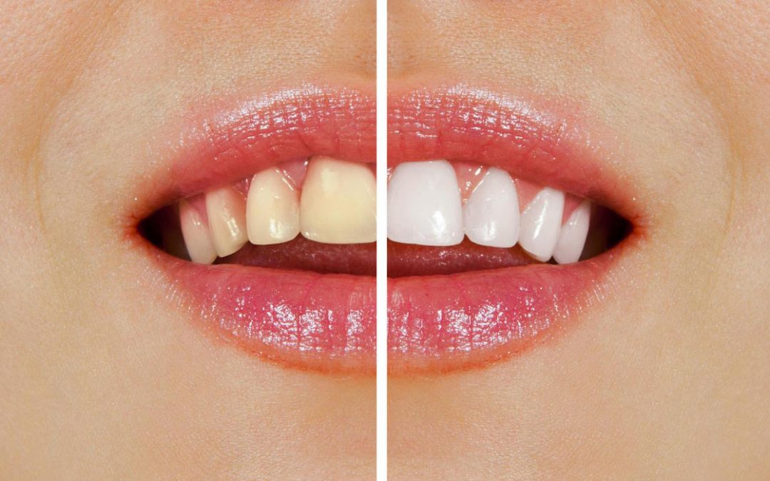 Warrnambool Dentist Tips: Over-the-Counter vs Professional Teeth Whitening