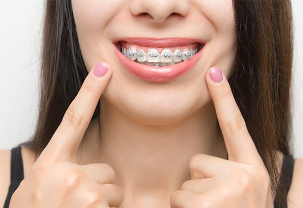 braces cleaning tips warrnambool