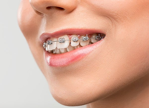 dental braces warrnambool