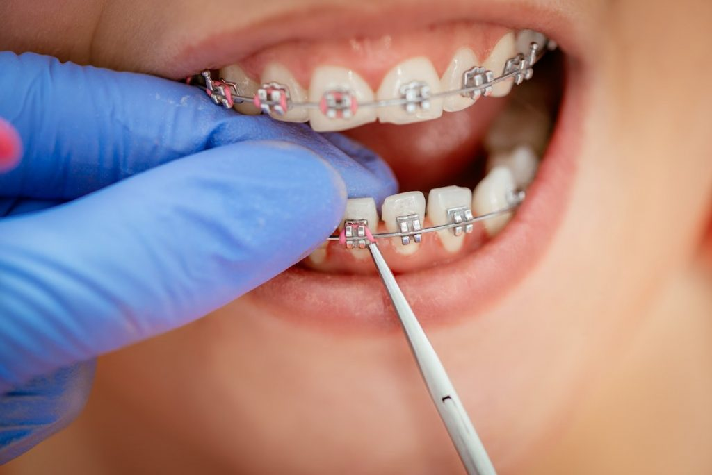 can-you-get-braces-if-you-have-missing-teeth-warrnambool