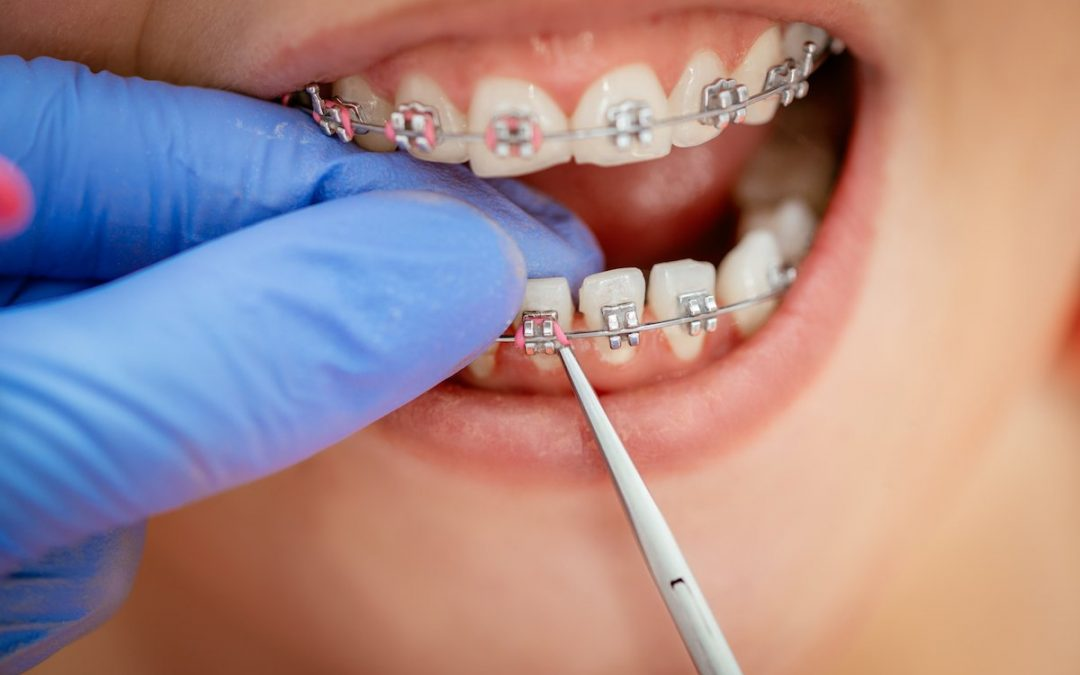 Can You Get Braces if you Have Missing Teeth?