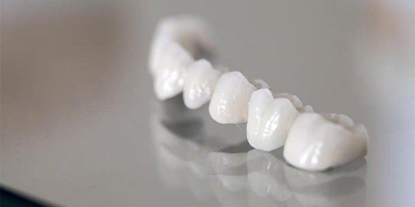 dental bridges warrnambool