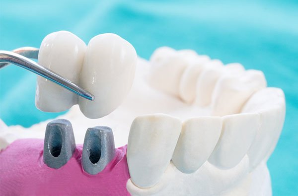 dental crowns warrnambool