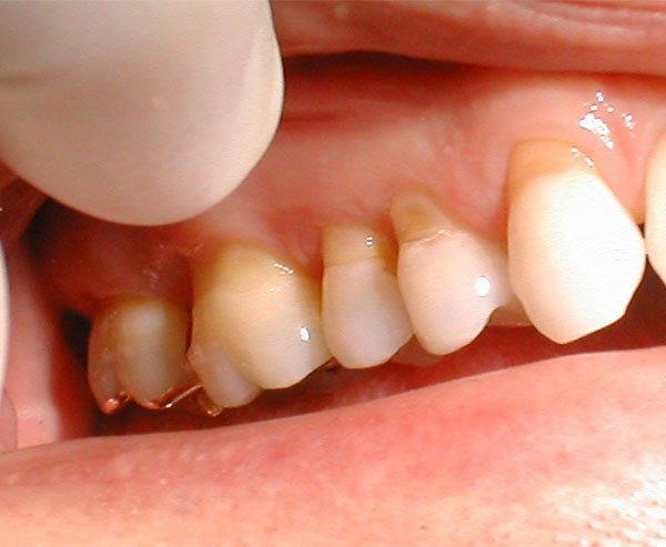 dental erosion warrnambool