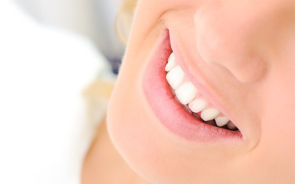 affordable teeth whitening warrnambool