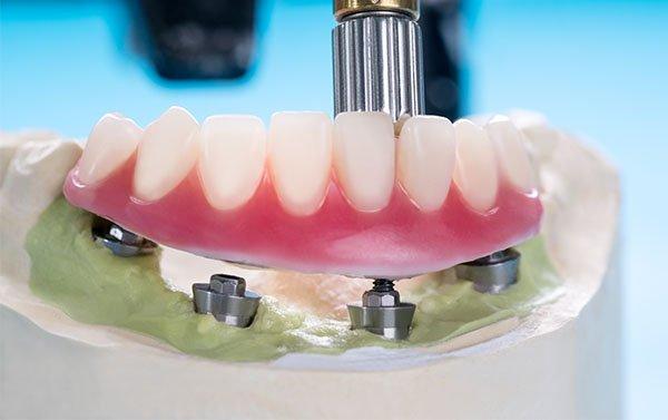 implant dentures warrnambool