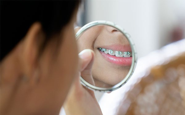 affordable orthodontic options Warrnambool