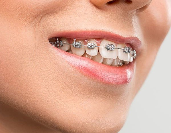 best orthodontics in Warrnambool