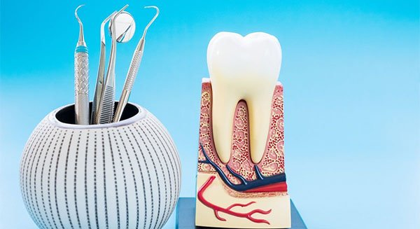 root canal treatment warrnambool