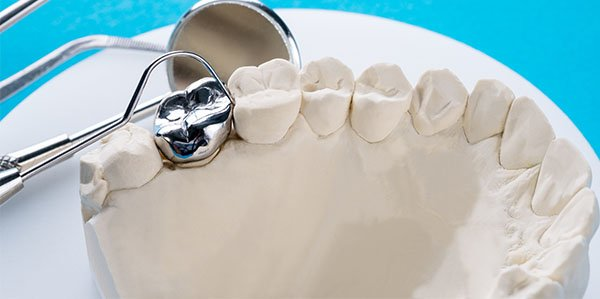 restorative dentistry warrnambool