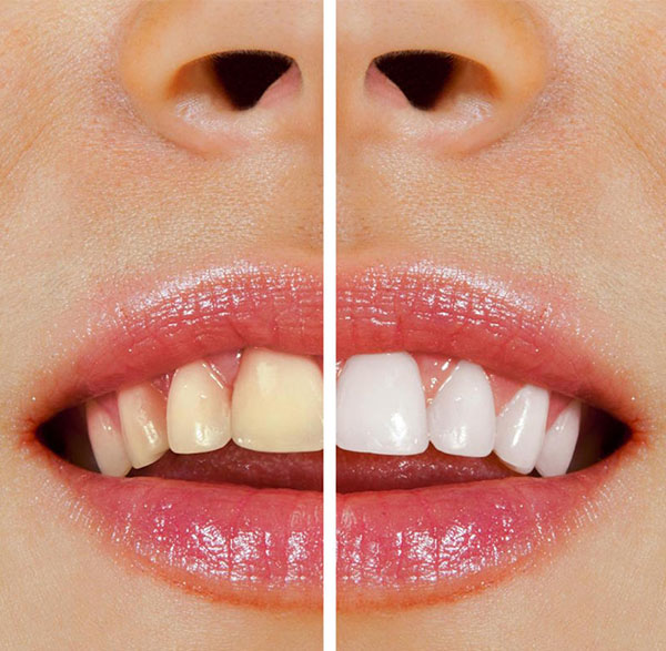 teeth whitening warrnambool