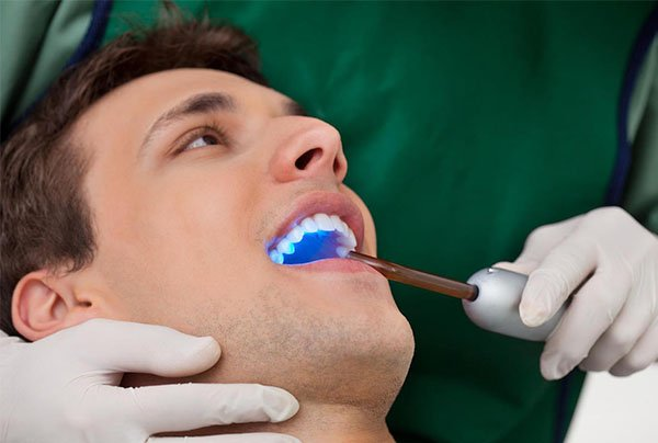 dental sealants warrnambool