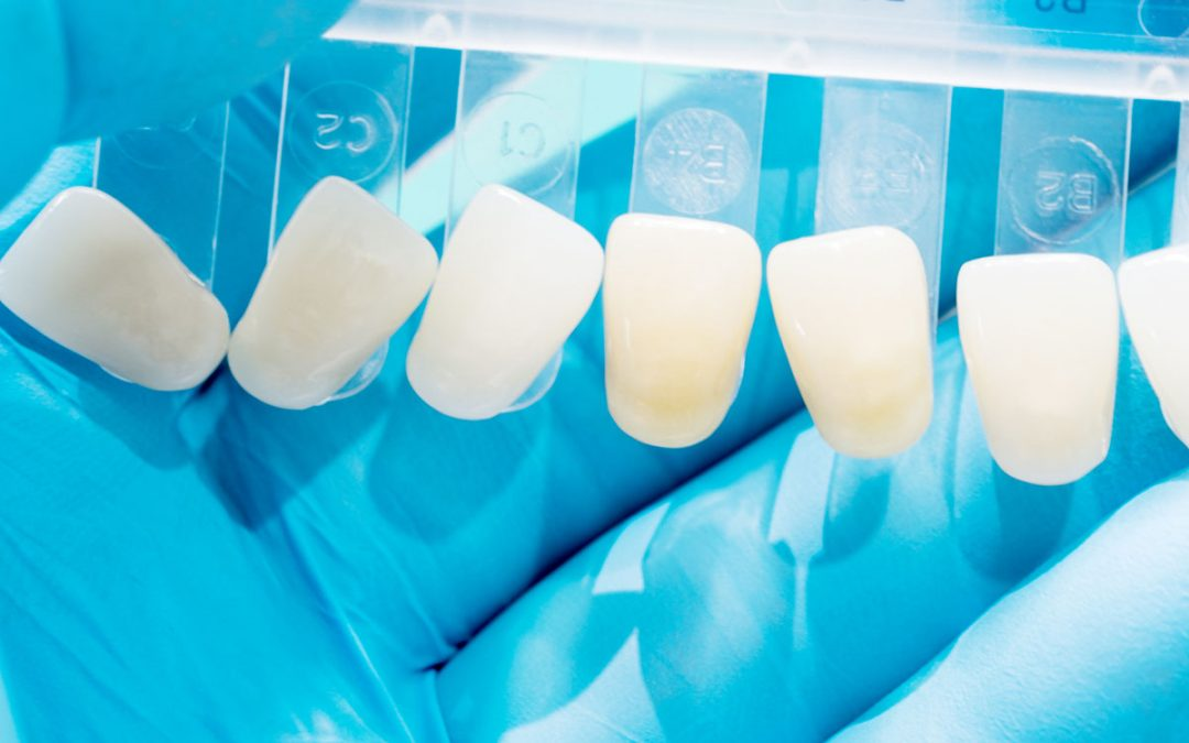 How Porcelain Veneers Can Make Your Smile Stunning
