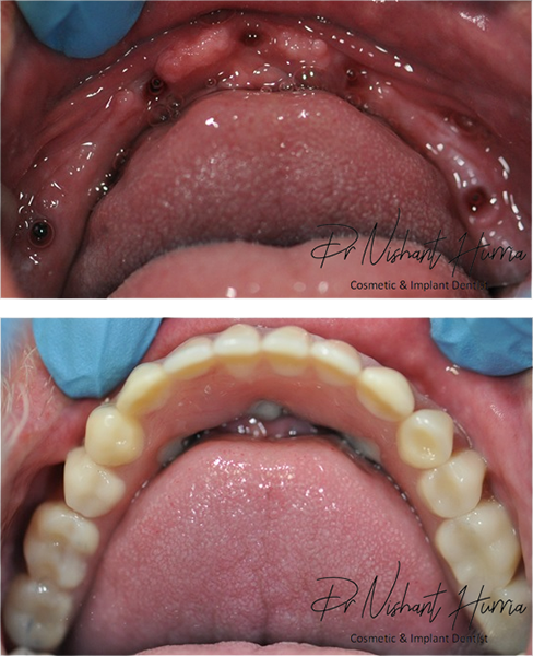 All on 5 fixed implant prosthesis warrnambool