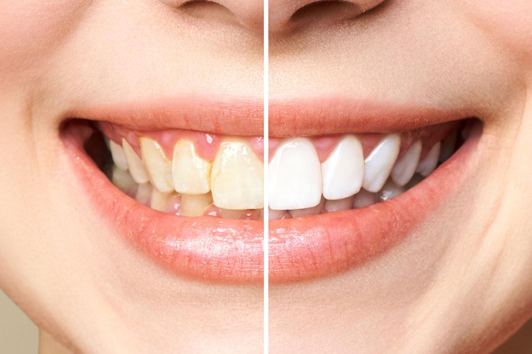 How Long Does Teeth Whitening Last Warrnambool