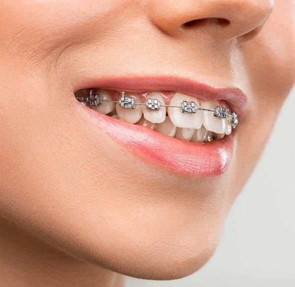 orthodontics warrnambool