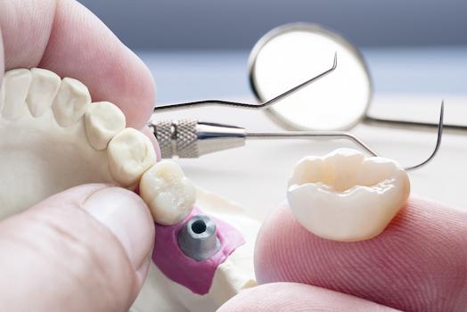 dental crown lost or damaged warrnambool