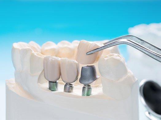 dental crowns warrnambool