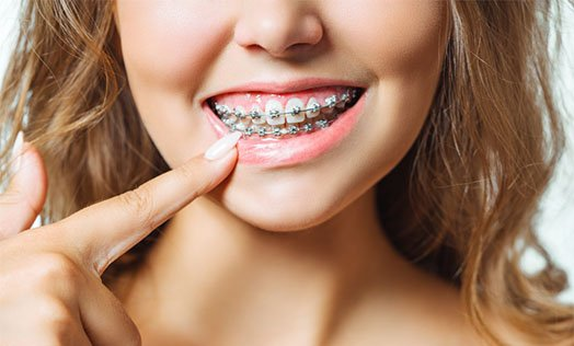 is orthodontics necessary warrnambool