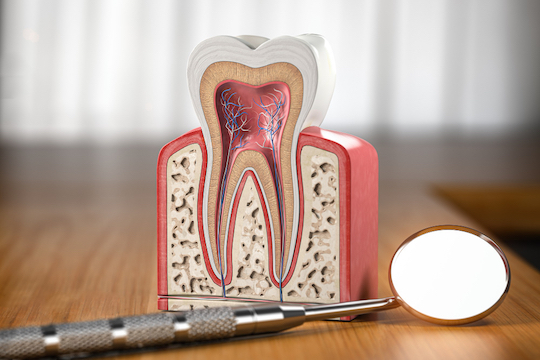 how will i know if i need a root canal warrnambool