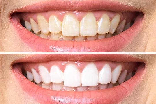 why do i have yellow or dark teeth warrnambool